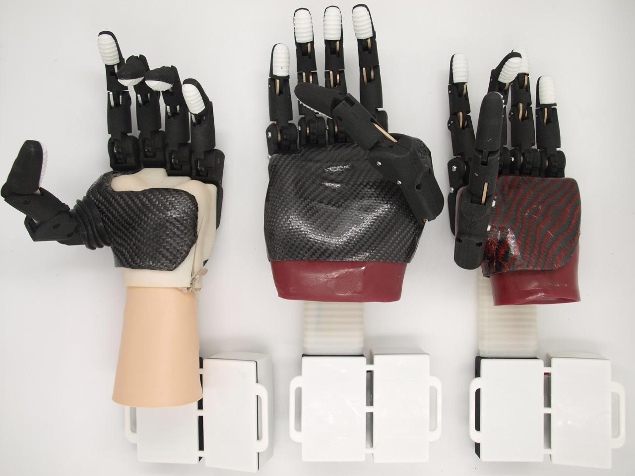 Предприятие КРЭТ запустит производство уникальных бионических протезов