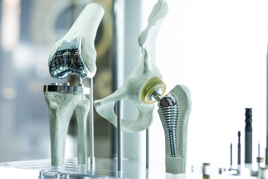 Проект Ростеха позволит снизить стоимость протезирования суставов на 20%